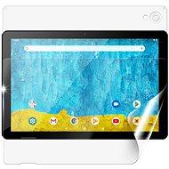 Screenshield UMAX VisionBook 10A für das ganze Gehäuse - Schutzfolie
