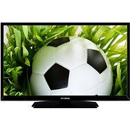 "24"" Hyundai HLP 24T539 - Fernseher"